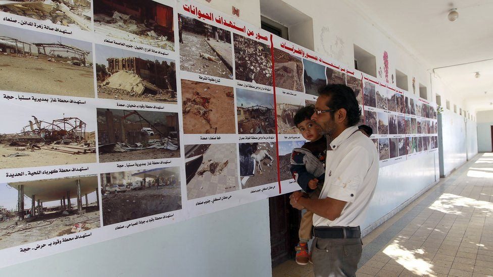 In the capital, Sanaa, the rebels have put up billboards showing health facilities allegedly destroyed by air strikes