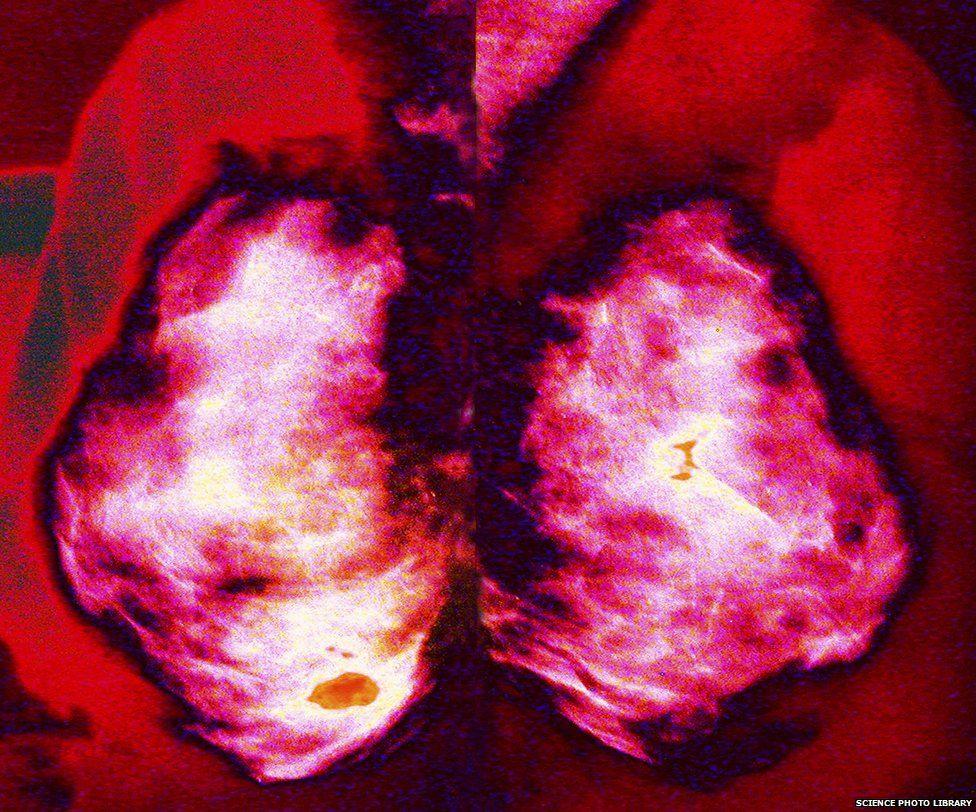 Mammogram, coloured X-ray