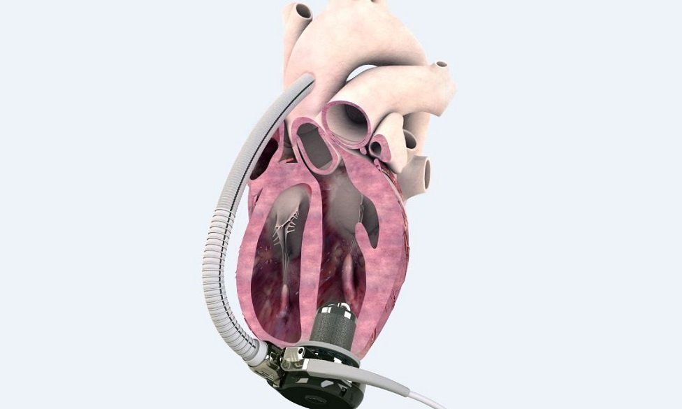 Calon Cardio MiniVad