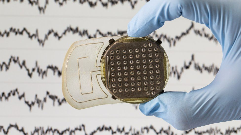 Sensors read brain activity
