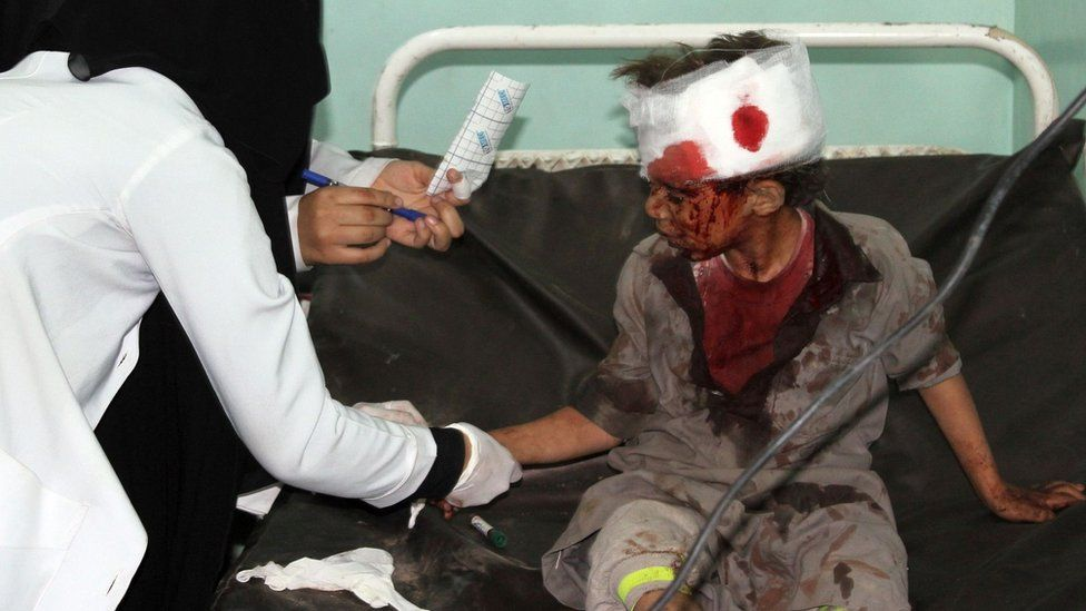 File photo showing a Yemeni boy being treated at a hospital after a Saudi-led coalition air strike on a bus carrying children in rebel-held Saada province on 9 August 2018