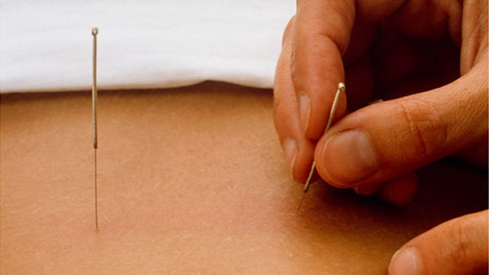 Acupuncture is normally given to adults