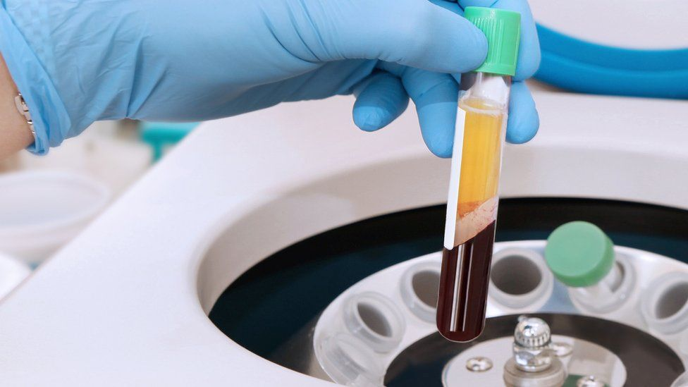 A vial of blood in a centrifuge