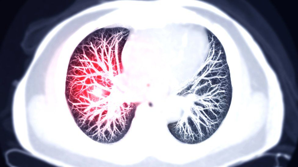 Scan of the lungs showing a pulmonary embolism