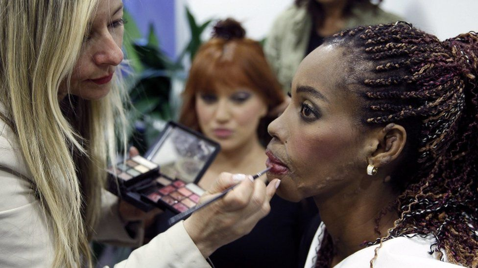 "A woman survivor of an acid attack participates in the event ""Model for a Day"" in Bogota, Colombia, 15 December 2015"