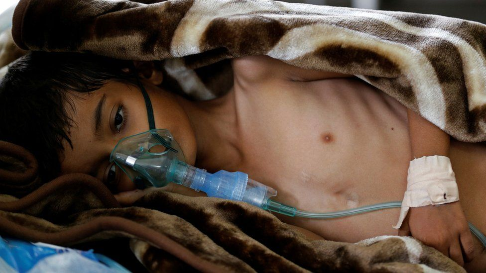 A boy in hospital in Sanaa, Yemen