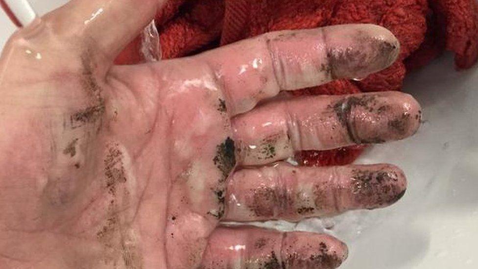 Katie's burned hand