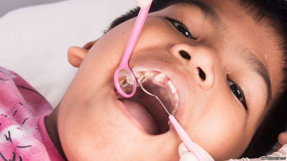 Boy having dental check-up