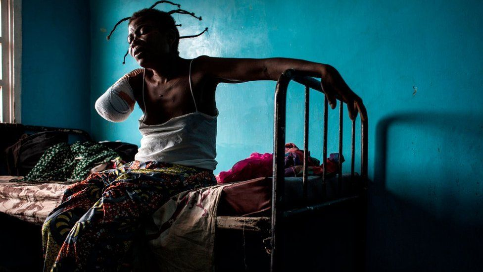 A Congolese women, who has had her arm amputated after a gun shot wound, sits on her bed on October 23, 2017 in Tshikapa
