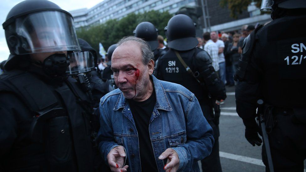 A bleeding protester is escorted by police in Chemnitz, 27 August