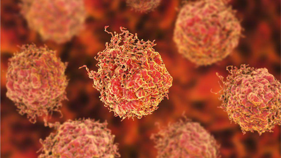 Illustration of 3D prostate cancer cells