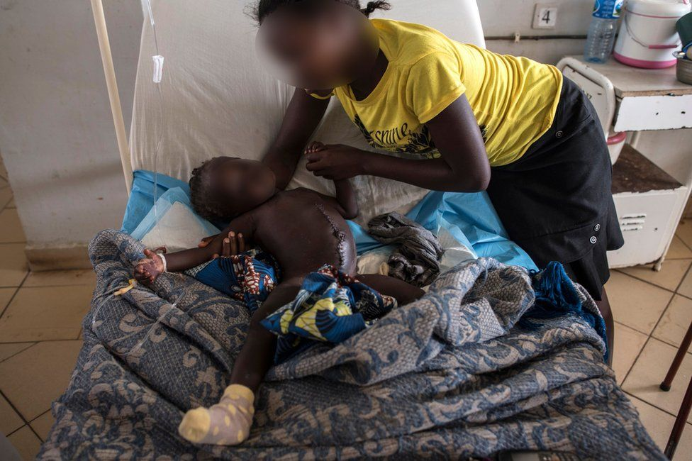 A young girl who lost her parents and was injured during the farmer-Fulani clashes is supported by her aunt in the paediatric ward of the Jos University Teaching Hospital on June 28, 2018.