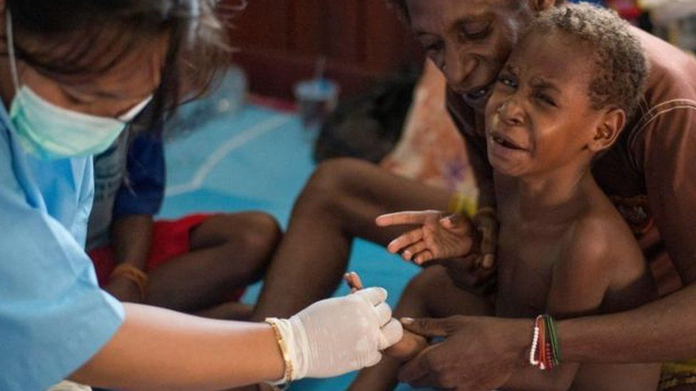 Nurse treats young boy in Papua.