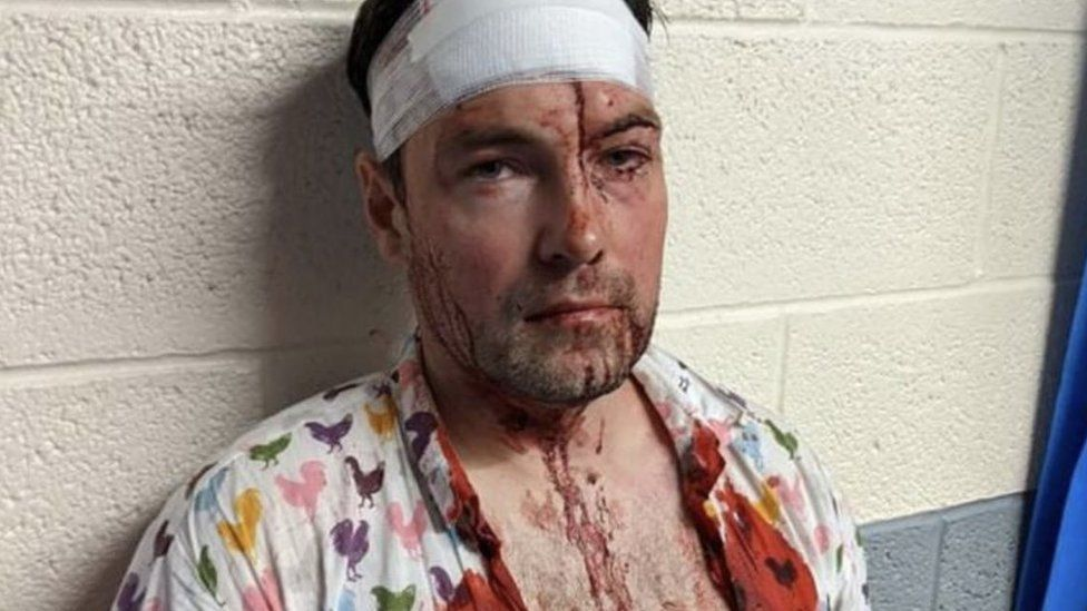 Rob after attack