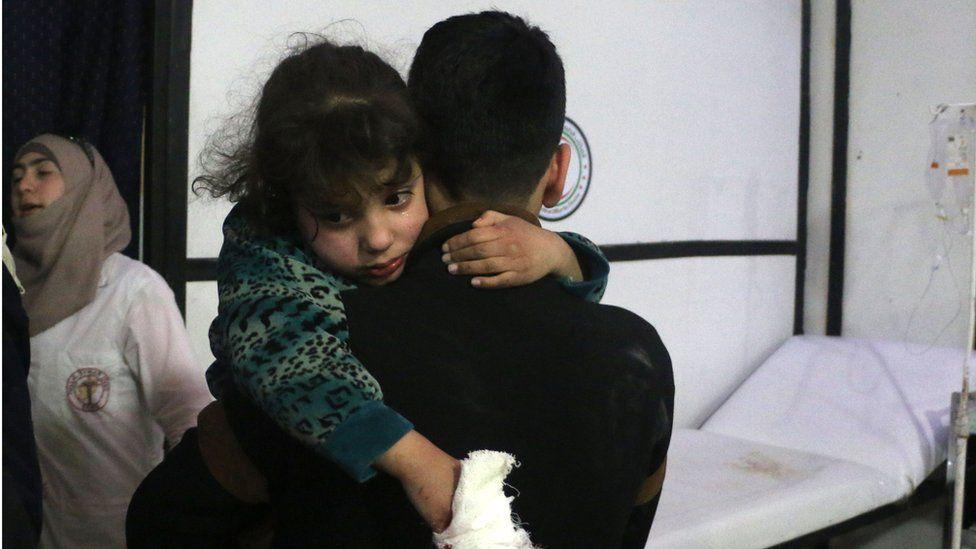 An injured child in Duma, Syria