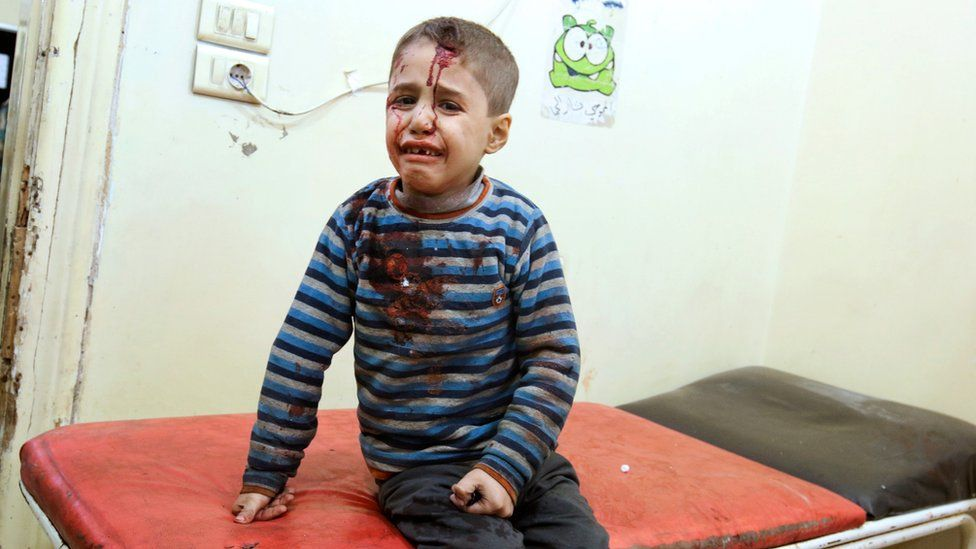 Injured boy in rebel held east Aleppo, 18 Nov
