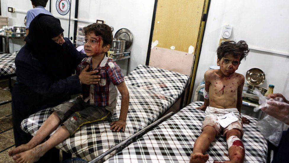 Syrian children wait for medical attention after an airstrike attack on Douma, outskirts of Damascus, Syria, 23 August 2016
