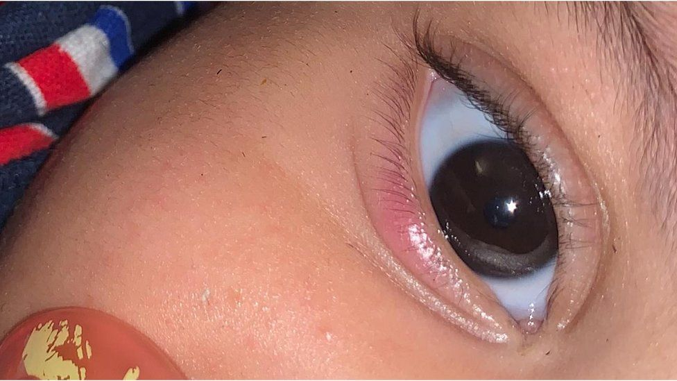 Annie's son's eye