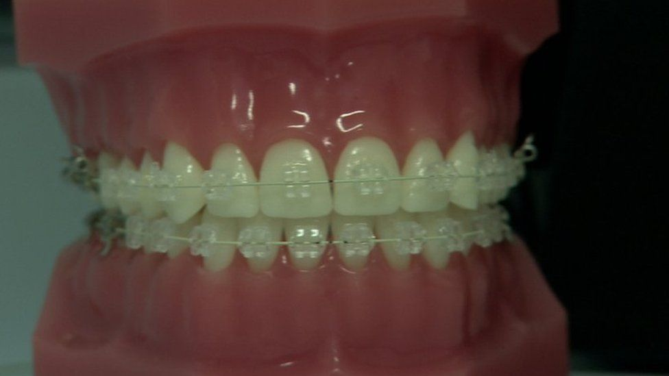 Measurements In Cm Clear Aligners Smile Direct Club