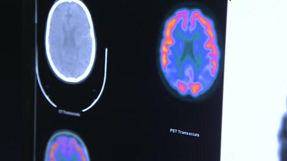 A PET scan result