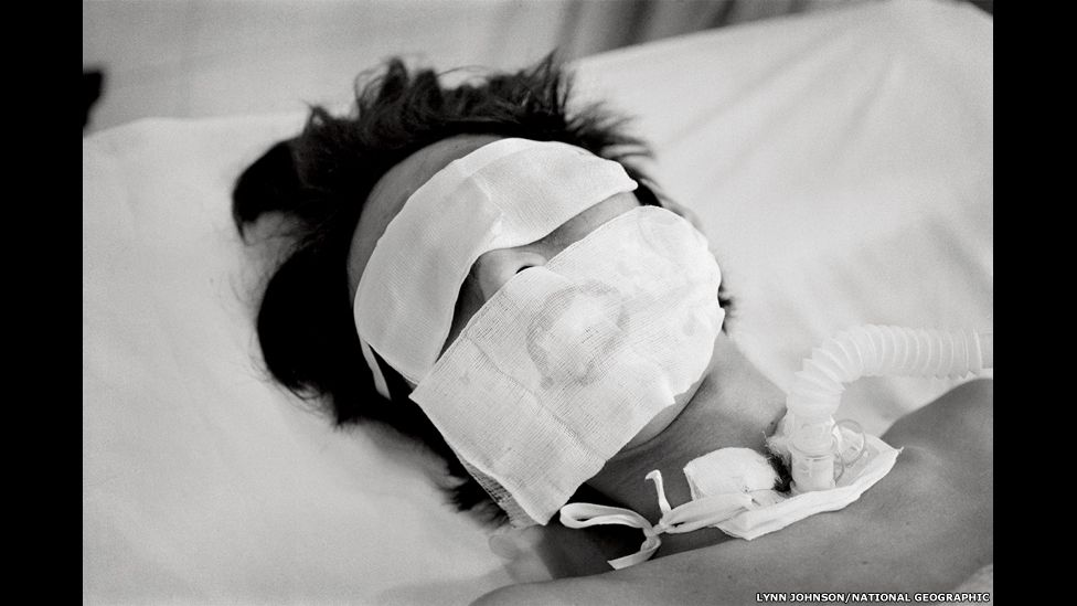 Comatose and on a ventilator, a bird flu patient in Hanoi who was not expected to live made a remarkable recovery.