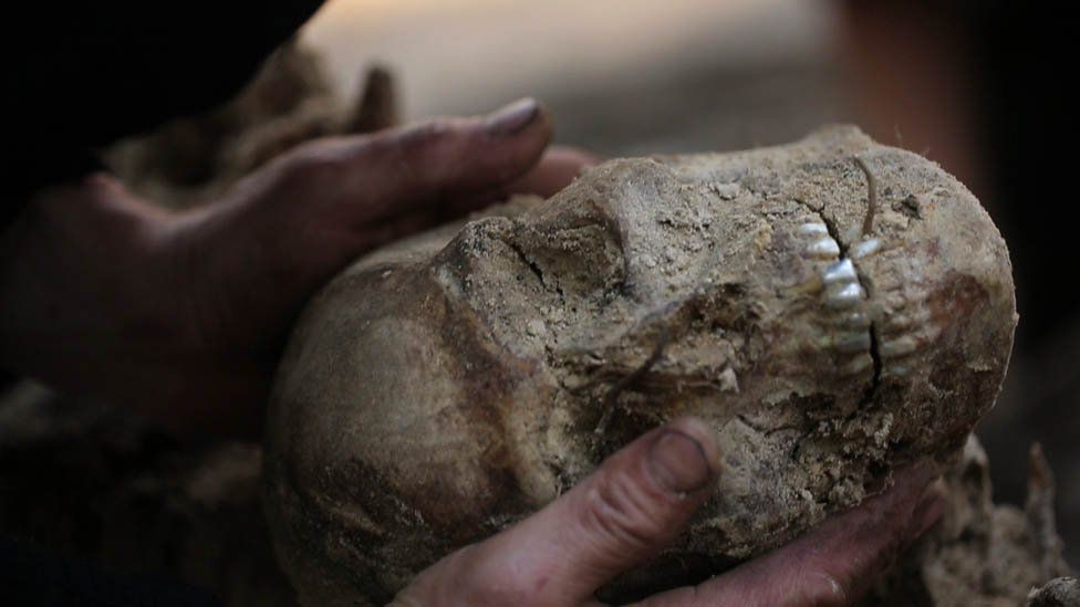A skull found in the mass grave