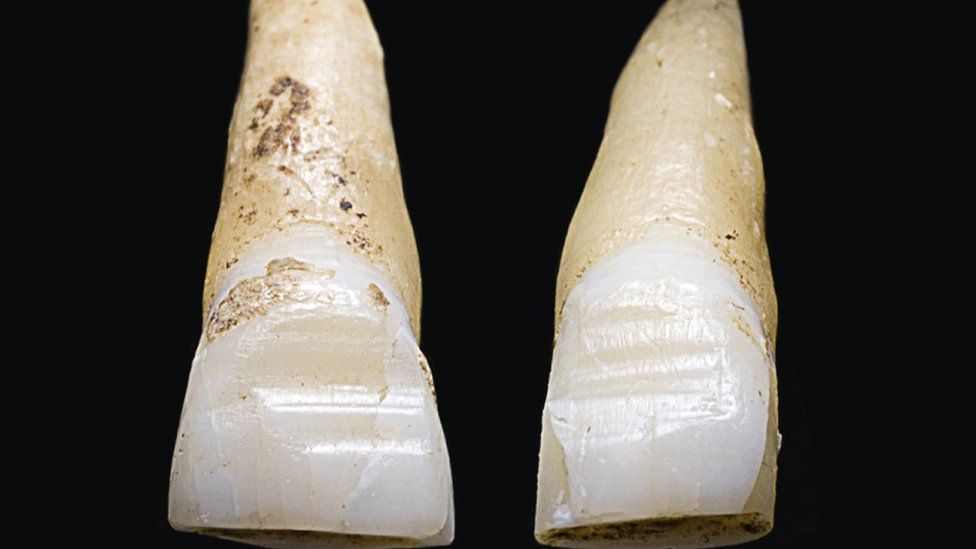 Filed teeth discovered at the Weymouth grave