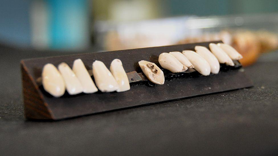 19th Century false teeth