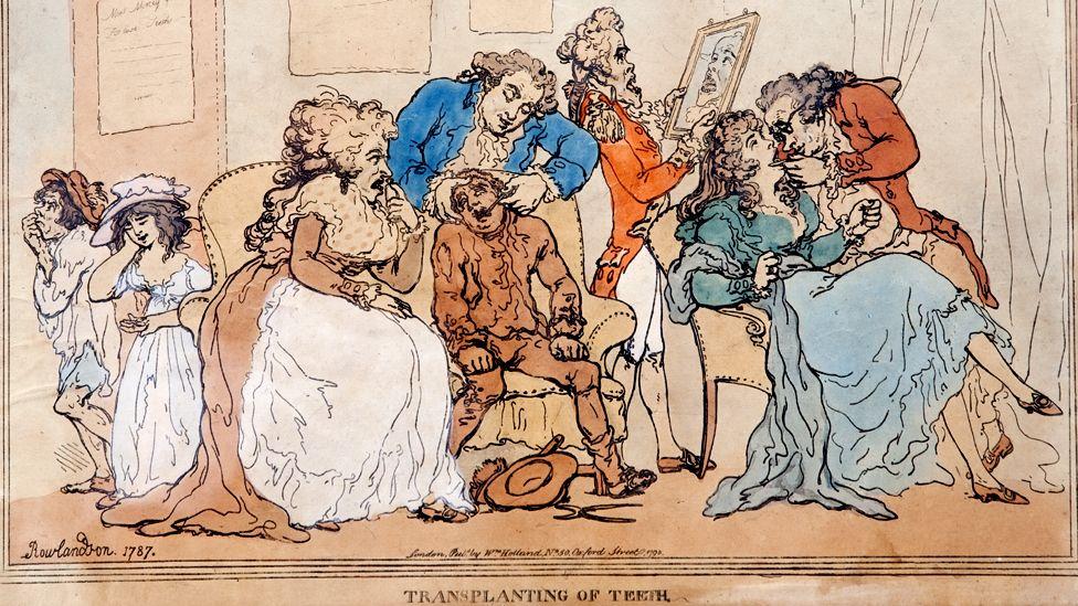 Transplanting of Teeth by Thomas Rowlandson, 1787