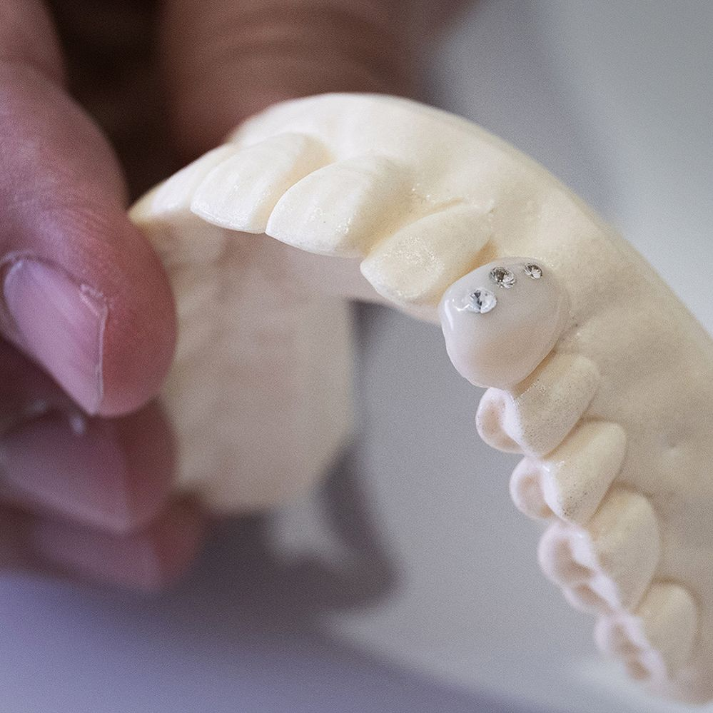 Yaeba tooth with crystals