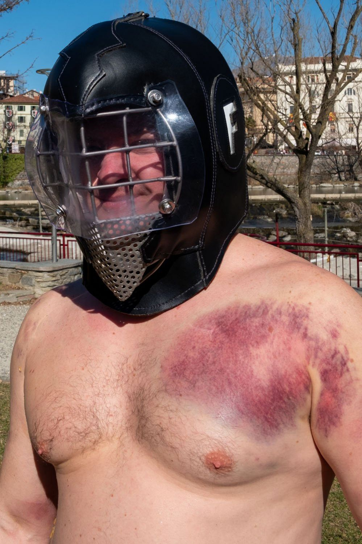 Bruised shoulder