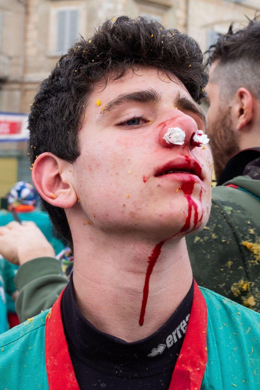 A man with an injured nose