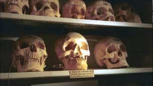 Reproducciones del cráneo de Ludwig van Beethoven.
