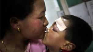 طفلة مصابة ووالدتها في مستشفى بمدينة غانغتوك