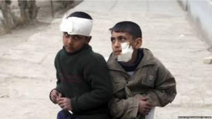 Раненные взрывом у школы иракские дети