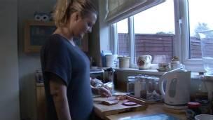 Britânica planeja amputar braço e substituí-lo por prótese - BBC ... 6157e13b7d