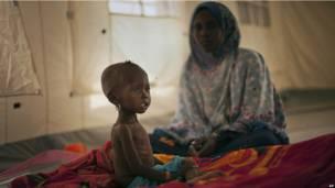 Дистрофичный ребенок в Чаде