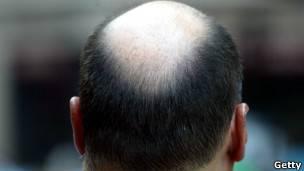 Corte de pelo en la coronilla