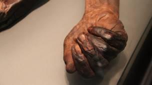 ओल्ड क्रोगैन मैन का हाथ, बीबीसी