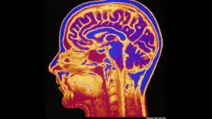 Imagen falsa y coloreada de un MRI. MEHAU KULYK/SPL