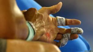 हाथ में बेहद कष्टकारी छालों के बावजूद रफ़ाएल नडाल ने ऑस्ट्रेलियाई ओपन के सेमी फ़ाइनल मुकाबले में 17 ग्रैंड स्लैम ख़िताबों  के विजेता रोजर फ़ेडरर को हरा ही दिया.