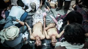 """18 مارس 2011: متظاهران فاقدا الوعي بعد احداث ما سمي """"بمجزرة جمعة الكرامة"""". عبد الرحمن جابر"""
