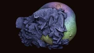 मृगौलामा भएको पत्थरीको रंगीन स्क्यानींग इलेक्ट्रोन माइक्रोग्राफ