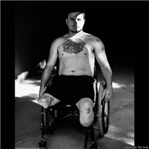 David Jay, proyecto fotográfico sobre cicatrices The Scar