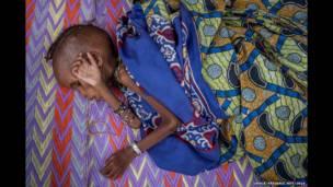 خوراک کی کمی کا شکار ایک بچہ کیمرون کے بتوری ہسپتال میں