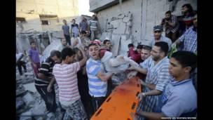 زخمی شدن کودک فلسطینی در غزه