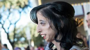 defb89186c La inspiradora historia de superación de Lizzie Velásquez,