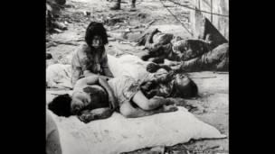 مصابين عام 1945، غيتي إيمدج.