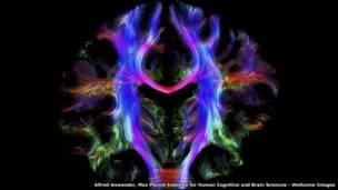 وصلات المخ البشري – ألفريد أنواندر – معهد ماكس بلانك لعلوم المخ والمعرفة الإنسانية