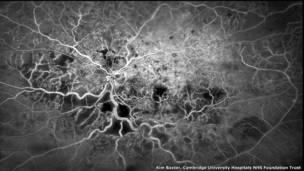 الأوعية الدمورية داخل العين - كيم باكستر، من مستشفى الجامعة التابعة لأمانة الهيئة الوطنية لخدمات الرعاية الصحية